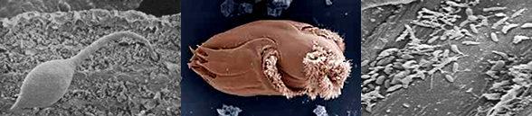 hongo-protozoo-bacterias