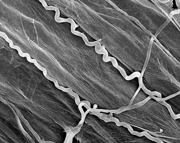 Vista detallada de las hifas del hongo endófito, registradas con un microscopio electrónico de barrido. El hongo sólo crece entre las células vegetales